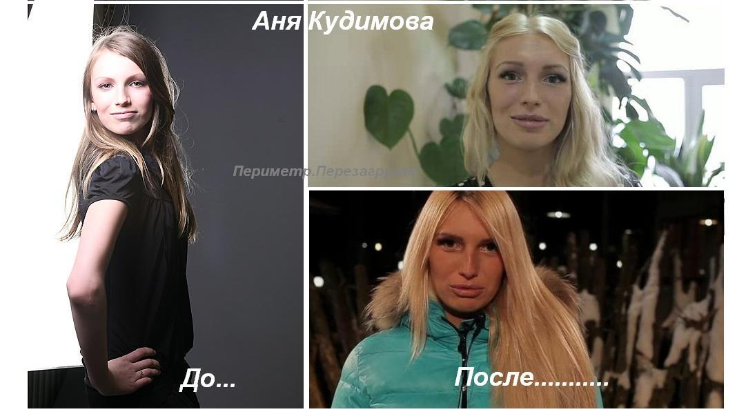 Фото кудимовой до и после пластики фото