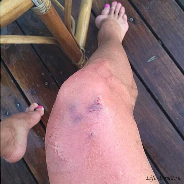На курорте в Турции акула чуть не откусила ногу Анастасии Волочковой