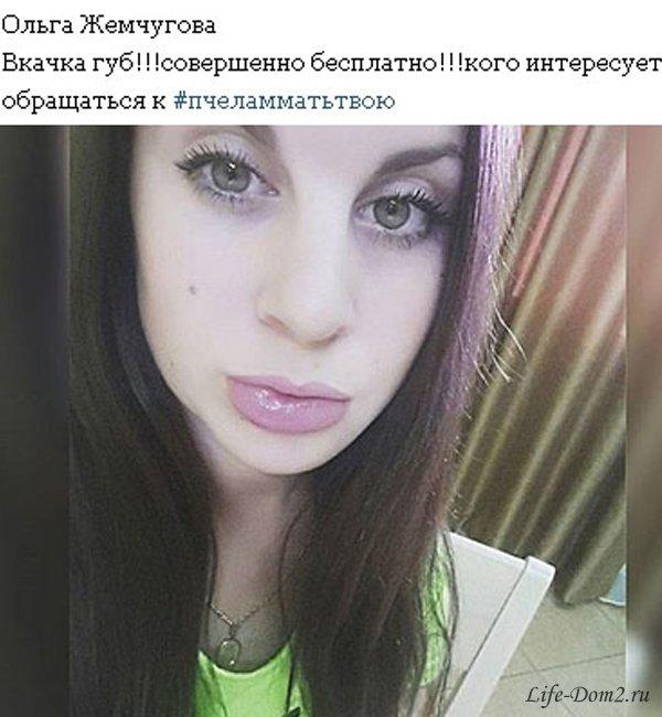 Ольга Жемчугова пострадала от укуса пчелы