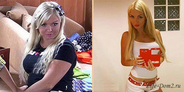 маша бухун до и после пластики фото этой истории