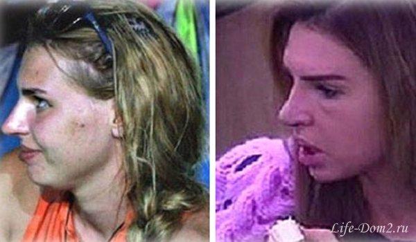 фото эллы сухановой до и после пластики каком месте трудовой