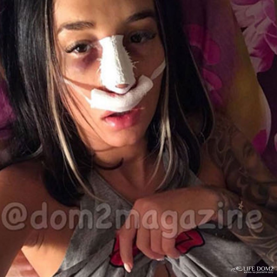 Марина Мексика сделала вынужденную пластическую операцию