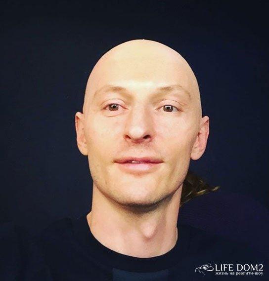 Павел Воля остался без волос после Нового года