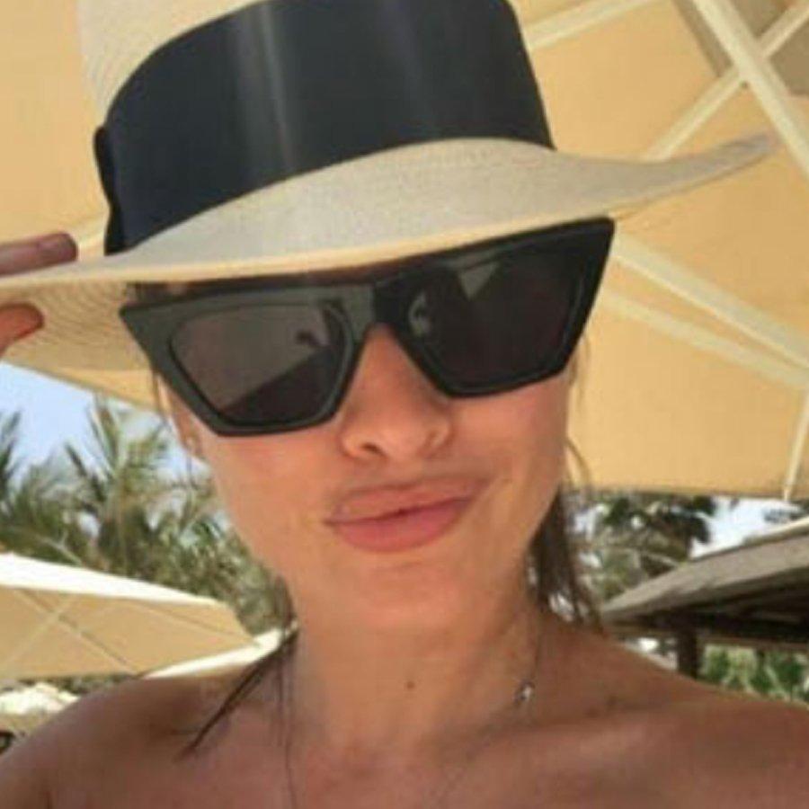 Губы Ксении Бородиной испортились после косметологического вмешательства