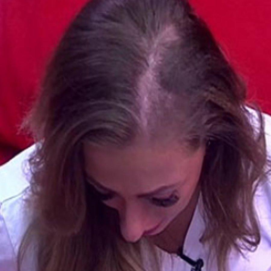 Благодаря крупному плану у Екатерины Родиной отметили проблемы с волосами