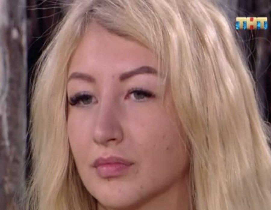 Лицо Риты Овсянниковой за последнее время покрылась прыщами