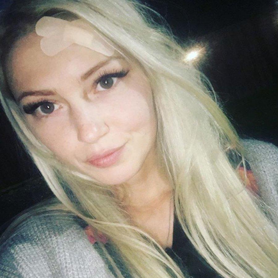 Екатерина Скютте показала последствия потасовки с Дарьей Друзьяк
