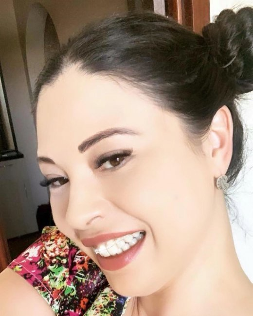 38-летняя Инна Воловичева поставила брекеты