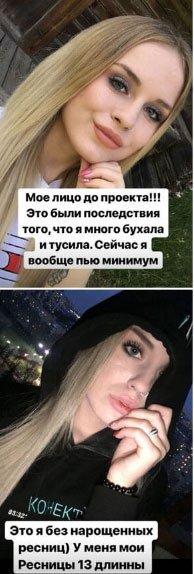 Милена Безбородова продемонстрировала, как она выглядела, когда сильно пила