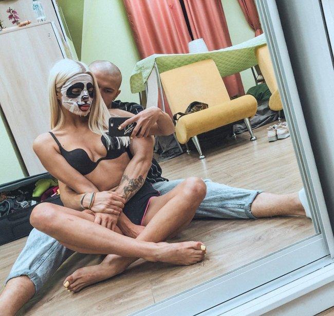 Настя Балинская решила устранить недостаток - кривой рот
