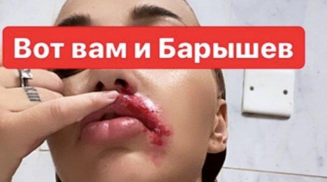 Никита Барышев и Настя Стецевят нанесли увечья друг другу